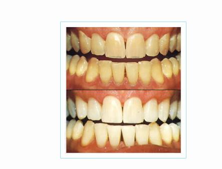 Clareadores Dentais A Venda Nas Farmacias Isto Funciona Dialogos